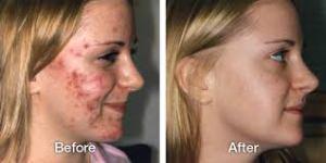 Como Contrarrestar El Acne Con Remedios Naturales
