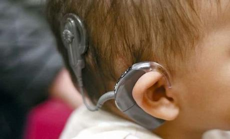 Niños sordos con implante coclear aprenden el lenguaje más rápido que los niños con audición normal