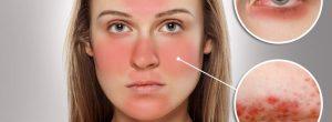 Rosácea en la piel - Los mejores consejos para curarte