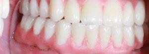 ¿Qué tipo de dentista consultar para el reemplazo permanente del diente?