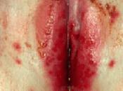 Herpes Genital Femenino Sintomas