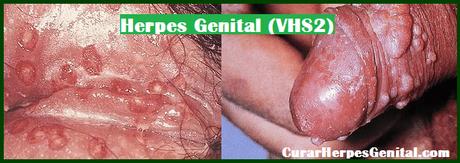 Tratamiento Para Herpes Super Efectivo 2018
