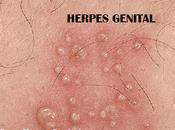Herpes Genital, Granos Espinillas Genitales?, Diferencias