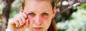 Ojos hinchados e hinchazón periorbitaria