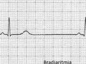 Bradiarrítmia; causa fallecimiento Astolfi, jugador Fiorentina