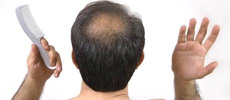Síntomas de la alopecia