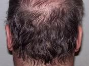 normal caiga pelo?