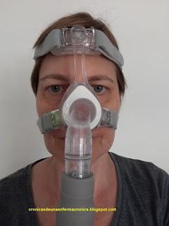 El síndrome de Apnea del Sueño