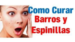 Como Quitar Barros Rapido y Facil – ¡No Te Rindas Todavía!