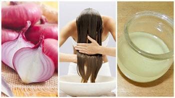 Remedios naturales para evitar la caída del cabello