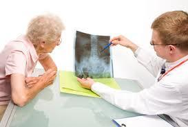 Síntomas del cáncer de colon