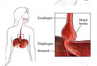La dieta perfecta si tienes hernia de hiato paperblog - Alimentos prohibidos para la hernia de hiato ...