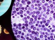 genoma leucemia esconde