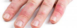 ¿Qué causa los dedos hinchados y con picazón?