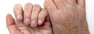 Dolor referido y fibromialgia