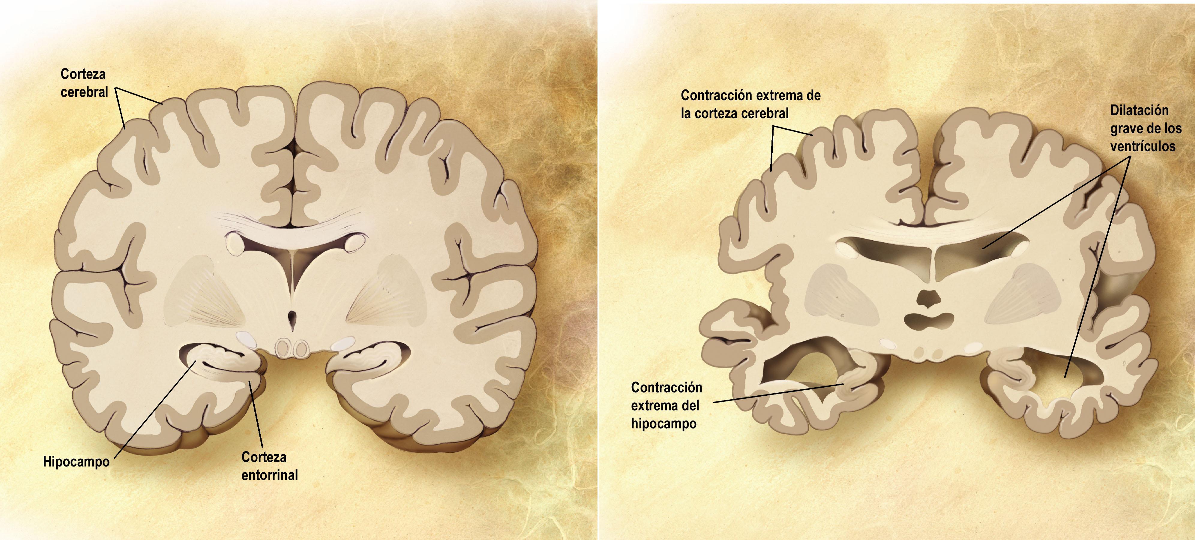 No hay evidencia de que los fármacos retrasen avance neurodegenerativo