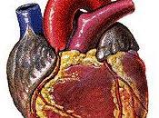 cirugía cardíaca adulto (anestesia cardiovascular