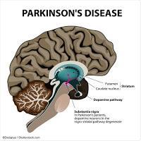 Terapia Genética elimina la Enfermedad de Parkinson