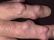 Artricenter: problemas piel relacionados Artritis Reumatoide