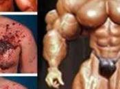 Abuso esteroides hormonas