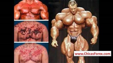 Abuso de esteroides y hormonas