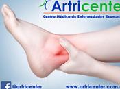 Artricenter: Artritis tobillo