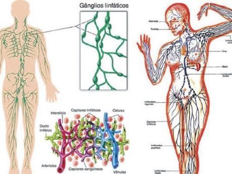 puede la malaria causar inflamación de los ganglios linfáticos