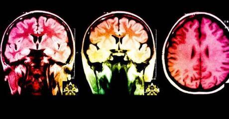 Neurocientíficos descubren una canción que reduce la ansiedad en un 65%