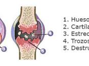 Artricenter: Evolución osteoartrosis