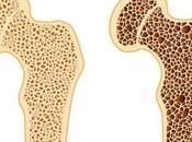 Osteoporosis: ¿Podrían probióticos proteger salud ósea?
