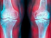 Dolor articulaciones tratamiento natural