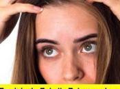 tipos pérdida cabello relacionada estrés