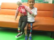 ¿Cómo donar prótesis? ONG´s hacen llegar necesitados