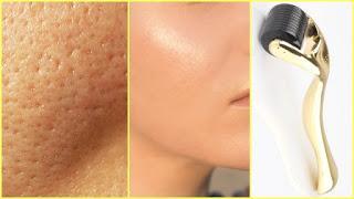 Beneficios del rodillo Skin Roller