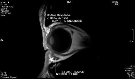 Anatomía de la órbita por resonancia magnética
