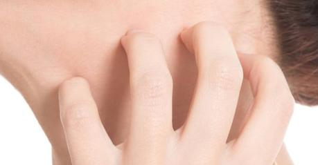 Causas de la piel atópica