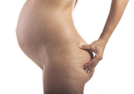 Estrias en el embarazo: prevenirlas y eliminarlas