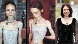 6 Personas Han Aprendido A Superan La Anorexia Así: