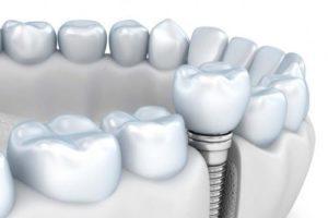 Implantes dentales en Madrid centro,