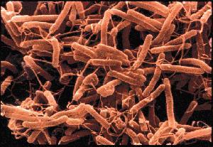Grupo de H.pylori amotinado a sus anchas en nuestro estómago y destrozando nuestra salud.