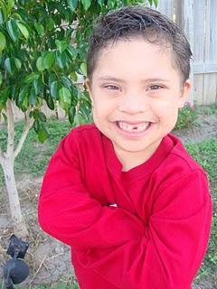Como alimentar a un niño con Sindrome de Down