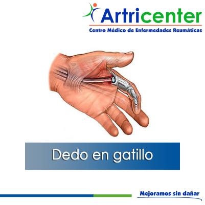Artricenter: Dedo en gatillo