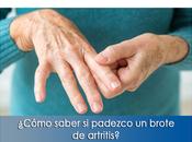 Artricenter: ¿Cómo saber padezco brote artritis?