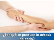 Artricenter: ¿Por produce artrosis codo?