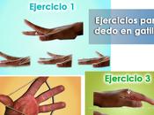 Artricenter: Ejercicios para dedo gatillo