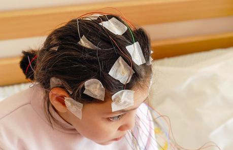 El niño epiléptico y las crisis epilépticas