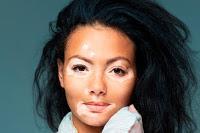 Crema tópica se mostró prometedora en el tratamiento del Vitiligo