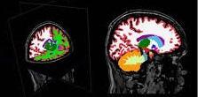 Científicos identifican genes de alto riesgo para esquizofrenia