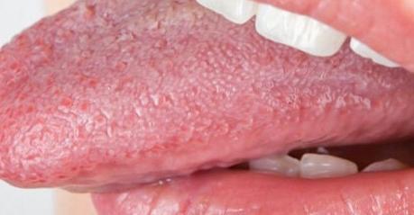 Síntomas de los granos en la lengua
