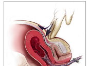 Encuentra Nuevo Indicio para Tratar Retención Placentaria